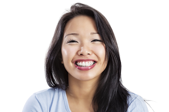 Attractive Young Asian Woman with Braces