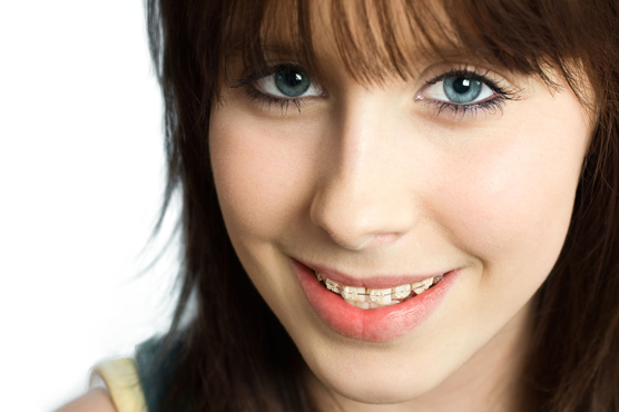 smiling-teen-with-clear-braces