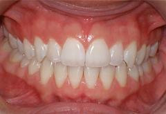 patient-1-orthodontics-final-front-intraoral