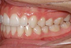 patient-1-orthodontics-final-left-intraoral