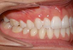 patient-1-orthodontics-final-right-intraoral