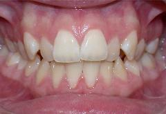 patient-1-orthodontics-initial-front-intraoral