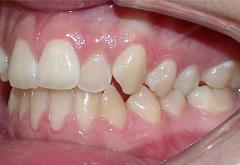 patient-1-orthodontics-initial-left-intraoral