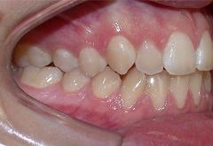 patient-1-orthodontics-initial-right-intraoral