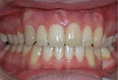 patient-3-orthodontics-final-front-intraoral