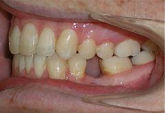 patient-3-orthodontics-final-left-intraoral