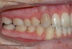 patient-3-orthodontics-final-right-intraoral