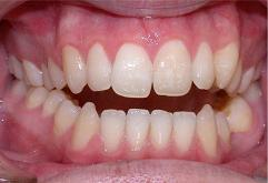 patient-3-orthodontics-initial-front-intraoral