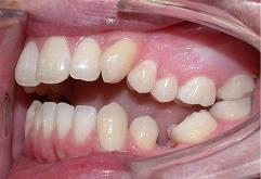 patient-3-orthodontics-initial-left-intraoral