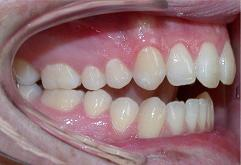 patient-3-orthodontics-initial-right-intraoral