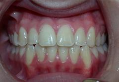 patient-4-orthodontics-final-front-intraoral