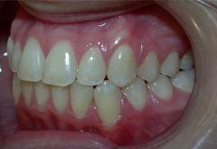 patient-4-orthodontics-final-left-intraoral