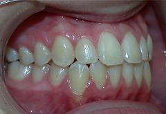 patient-4-orthodontics-final-right-intraoral