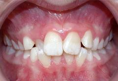 patient-4-orthodontics-initial-front-intraoral