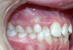 patient-4-orthodontics-initial-right-intraoral