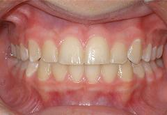 patient-5-orthodontics-final-front-intraoral