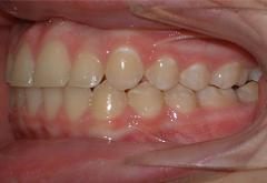 patient-5-orthodontics-final-left-intraoral