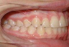 patient-5-orthodontics-final-right-intraoral