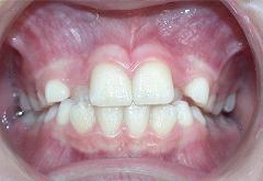 patient-5-orthodontics-initial-front-intraoral