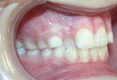 patient-5-orthodontics-initial-right-intraoral